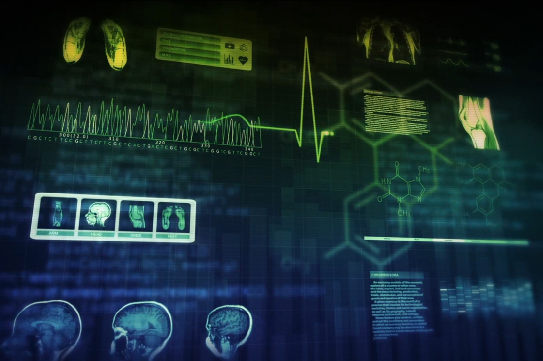 IBM's Watson for Oncology: A Biased and Unproven Recommendation System in CancerTreatment?